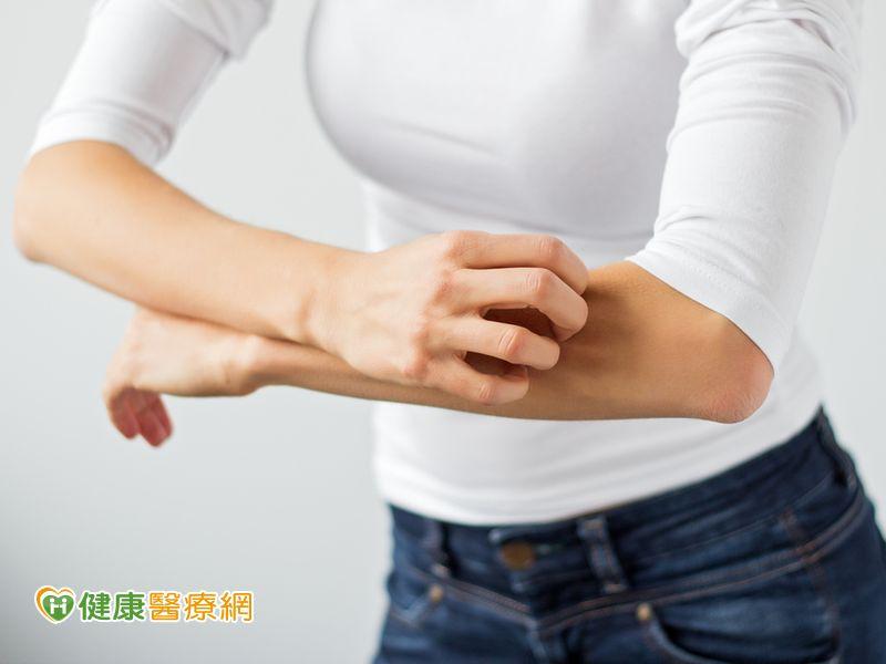 你有過敏性皮膚炎嗎?千萬別抓到流湯流膿...