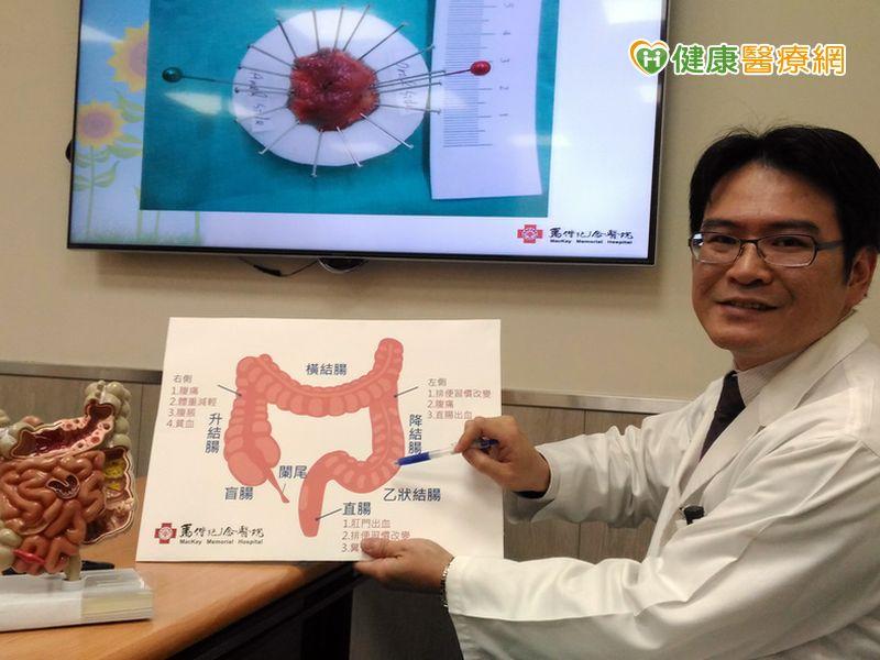 扁平狀息肉癌變機率高早期大腸癌治療無傷口...