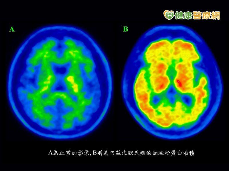 透過新型試劑加速確診失智原因...