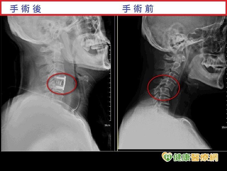 跌倒後頸部痠痛竟是頸椎脫位惹禍...