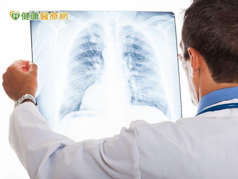 肺癌新一代化療藥物副作用少醫囑性高提升療效...