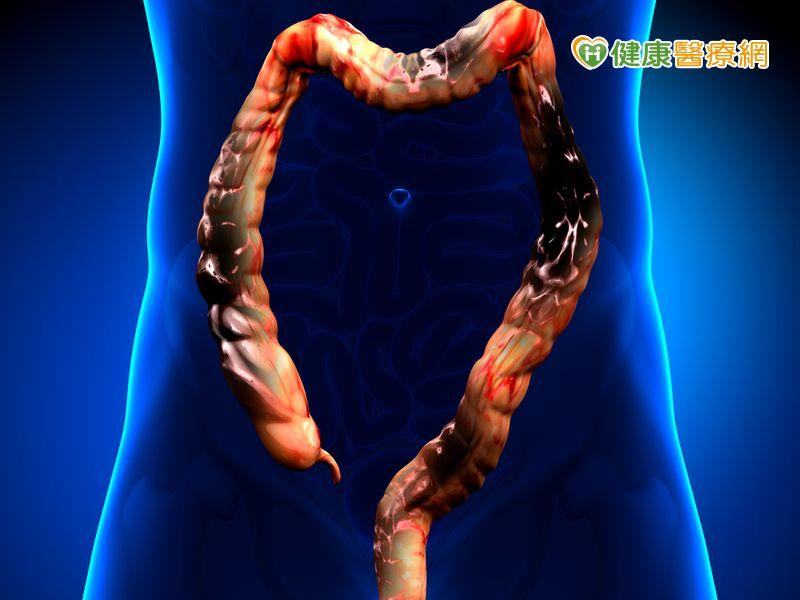 大腸癌部位分左右會有不同症狀...