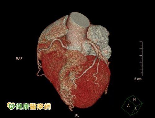 心臟病高居台灣第二大死因!「心肌梗塞高危險群」更容易一下斃命...