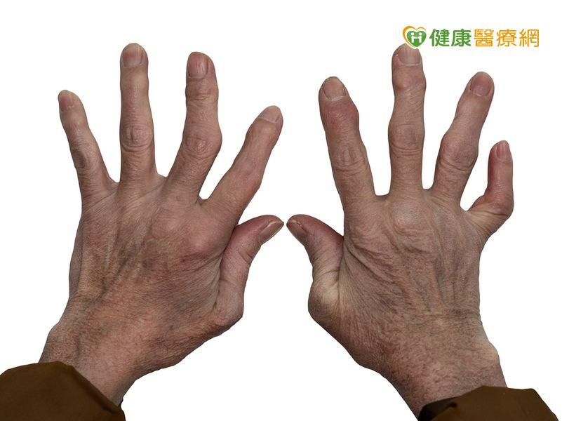 類風濕關節炎易有肌少症伸展運動可防範...