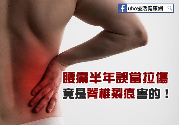 腰痛半年誤當拉傷竟是脊椎裂痕害的!...
