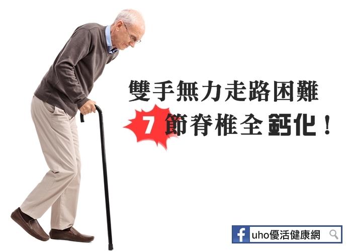 雙手無力走路困難七節脊椎全鈣化!...