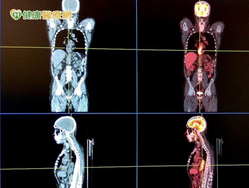 4D電腦斷層掃描儀讓腫瘤無所遁形...