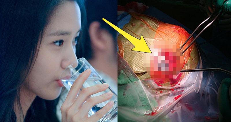她六年來天天喝生水,突然昏迷送醫,醫生竟從她腦中拔出「25公...