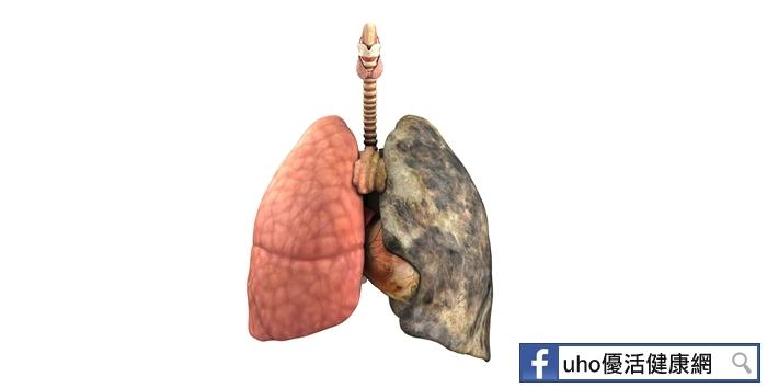 肺癌患者福音!新免疫療法問世...