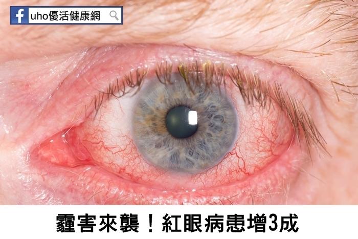 霾害來襲!紅眼病患增3成...