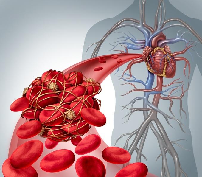 自費「洗血脂」可以降膽固醇?醫生這樣說...保健王道應該是做...