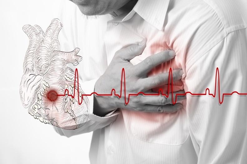 美國總統艾森豪「胃疼」,竟然是心肌梗塞?三分鐘帶你認識「冠心...