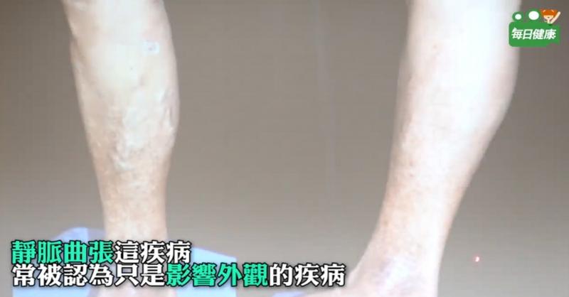 腿上長出「藍色蜘蛛網」可能是致命徵兆?愛穿高跟鞋的水水千萬要...