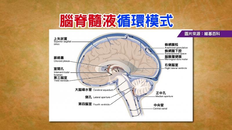 失智症悄悄地來定期檢測提早發現治療...