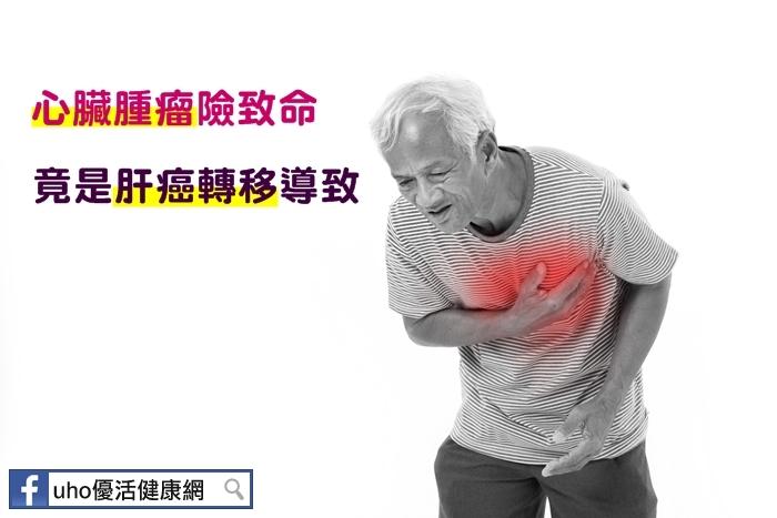 心臟腫瘤險致命竟是肝癌轉移導致...