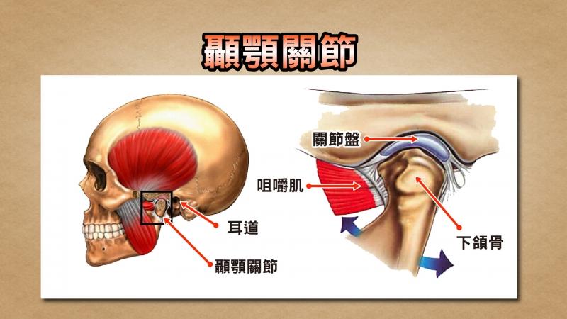 頭痛不是頭在痛,竟是腮幫子有問題?!...