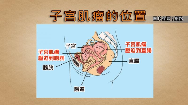 血崩、便祕、頻尿,別成為子宮肌瘤幫兇!...