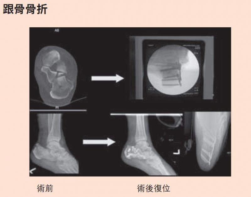 90%「跟骨骨折患者」都是基層勞工!足踝外科名醫:這關節不存...