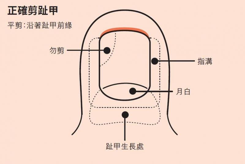 「凍甲」(甲溝炎)拔掉趾甲就會痊癒了?足踝外科名醫這樣說:與...